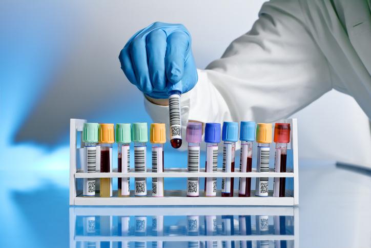 Ecrans laboratoires biologie médicale